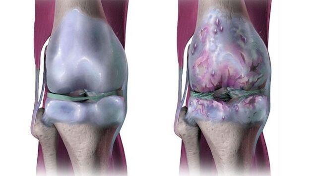 artroza liječenje