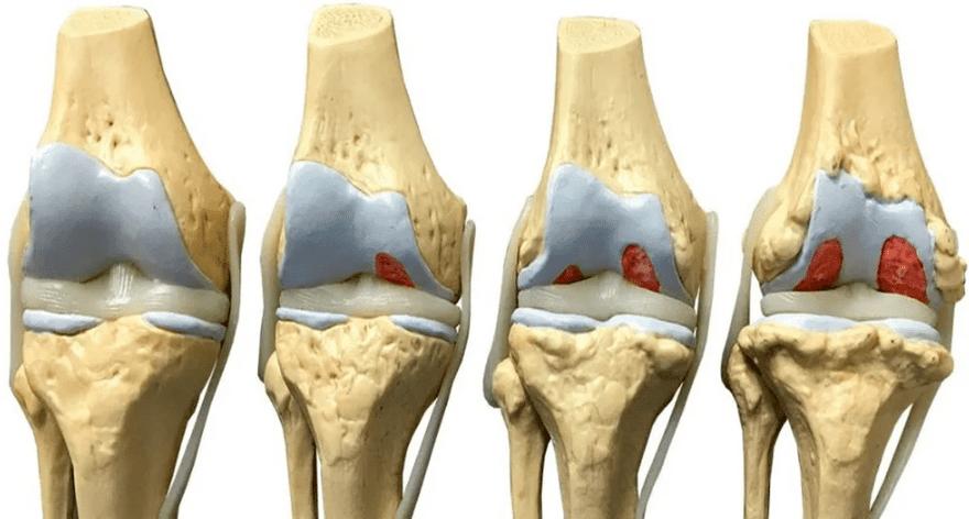 artroza koljena operacija forum